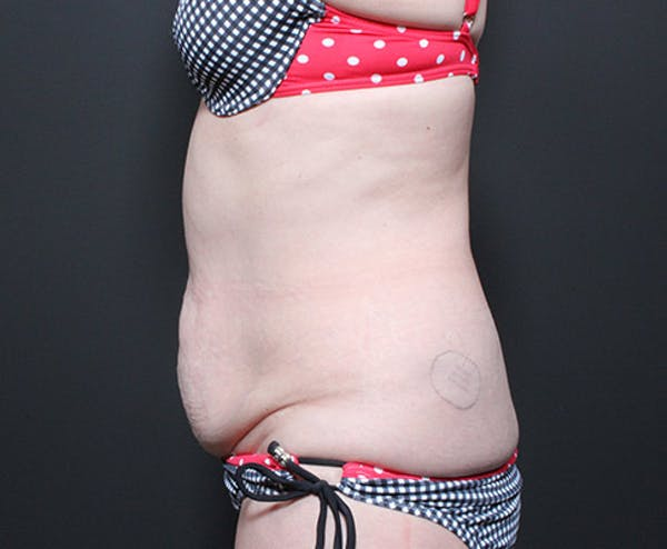 Liposuction Gallery - Patient 14089778 - Image 5