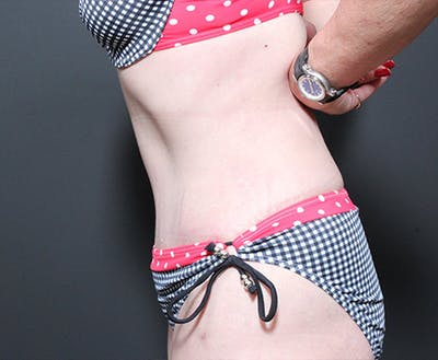 Liposuction Gallery - Patient 14089778 - Image 6