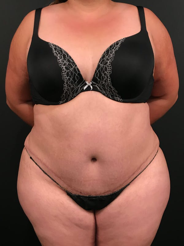 Plus Size Tummy Tuck® Gallery - Patient 14089780 - Image 2