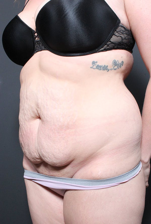 Liposuction Gallery - Patient 14089783 - Image 1