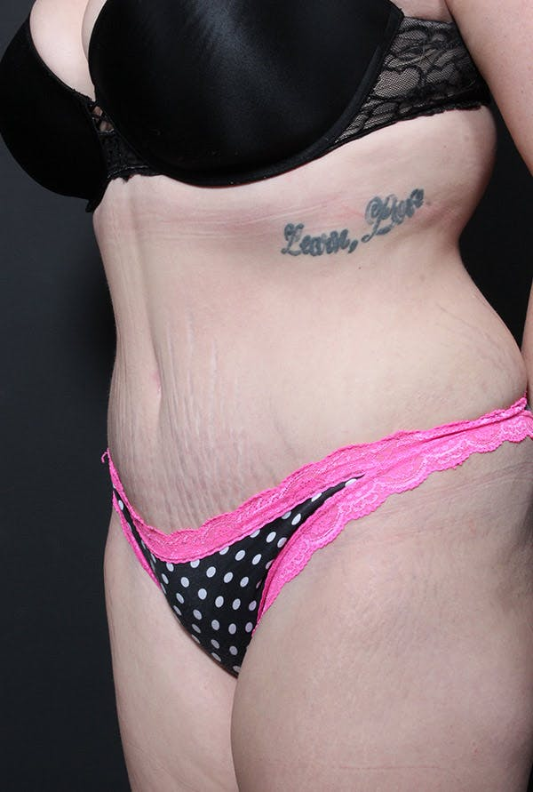 Liposuction Gallery - Patient 14089783 - Image 2