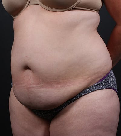Mommy Makeover Gallery - Patient 14089784 - Image 1