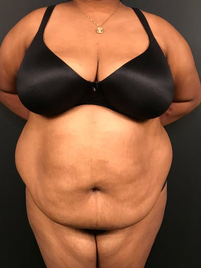 Plus Size Tummy Tuck® Gallery - Patient 14089785 - Image 1
