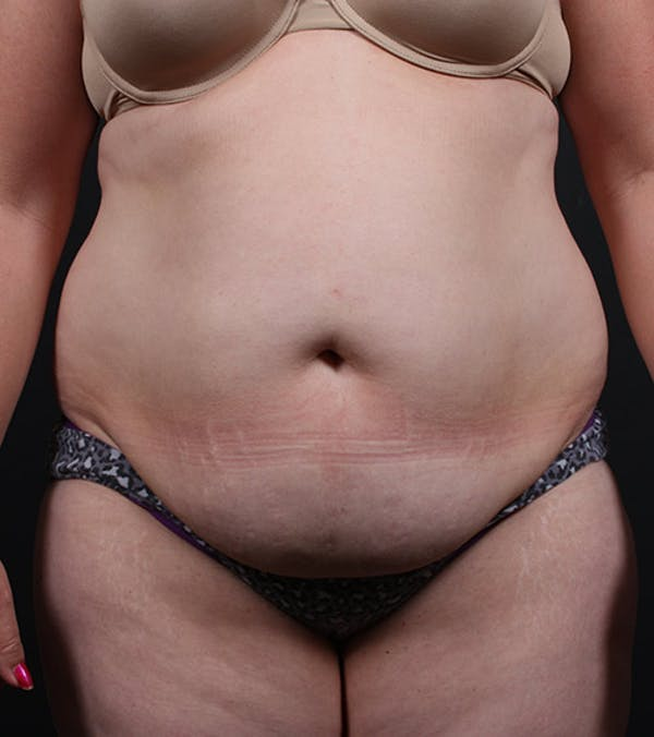 Mommy Makeover Gallery - Patient 14089784 - Image 3