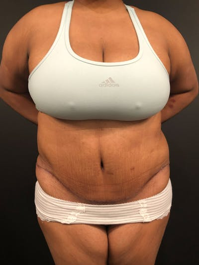 Plus Size Tummy Tuck® Gallery - Patient 14089785 - Image 2