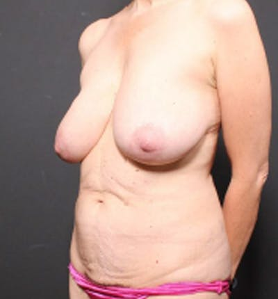 Breast Lift Mastopexy Gallery - Patient 14089786 - Image 1