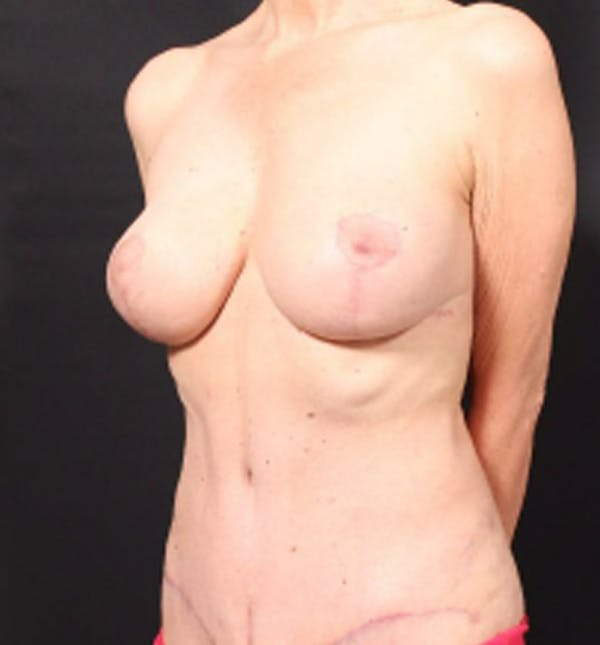 Breast Lift Mastopexy Gallery - Patient 14089786 - Image 2