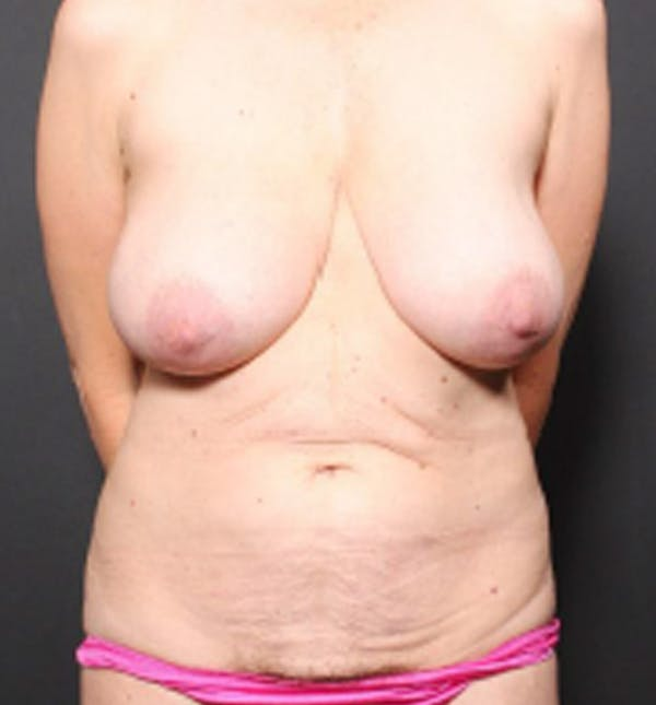 Breast Lift Mastopexy Gallery - Patient 14089786 - Image 3