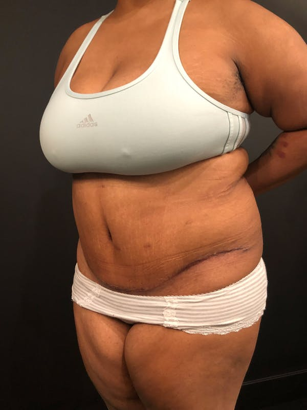 Plus Size Tummy Tuck® Gallery - Patient 14089785 - Image 4