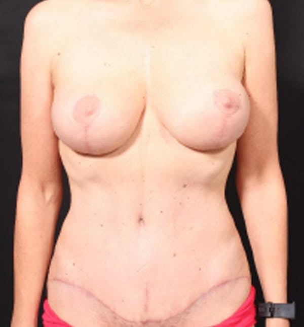 Breast Lift Mastopexy Gallery - Patient 14089786 - Image 4