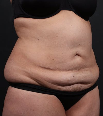 Mommy Makeover Gallery - Patient 14089787 - Image 1