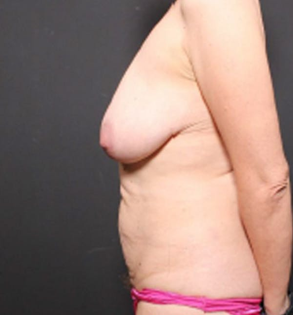 Breast Lift Mastopexy Gallery - Patient 14089786 - Image 5