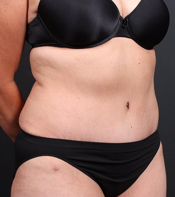 Mommy Makeover Gallery - Patient 14089787 - Image 2