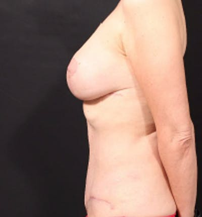 Breast Lift Mastopexy Gallery - Patient 14089786 - Image 6