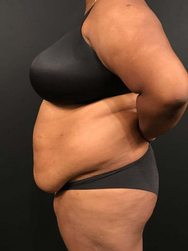 Plus Size Tummy Tuck® Gallery - Patient 14089785 - Image 5