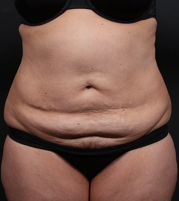 Mommy Makeover Gallery - Patient 14089787 - Image 3