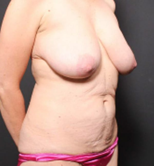 Breast Lift Mastopexy Gallery - Patient 14089786 - Image 7