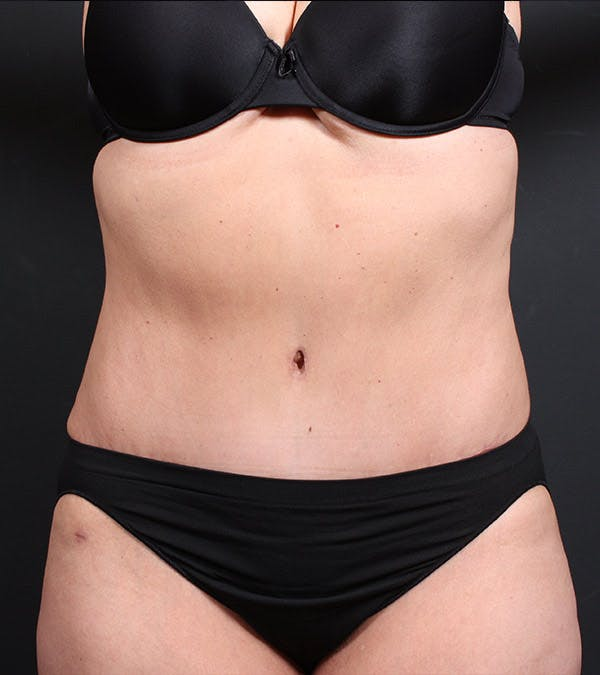 Mommy Makeover Gallery - Patient 14089787 - Image 4