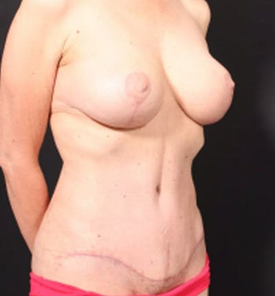 Breast Lift Mastopexy Gallery - Patient 14089786 - Image 8