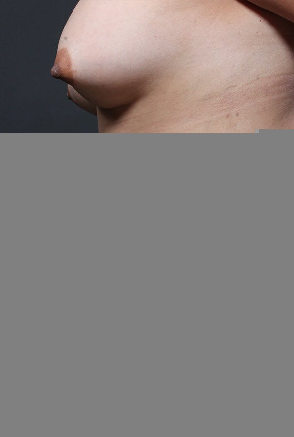 Liposuction Gallery - Patient 14089789 - Image 6