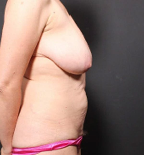 Breast Lift Mastopexy Gallery - Patient 14089786 - Image 9