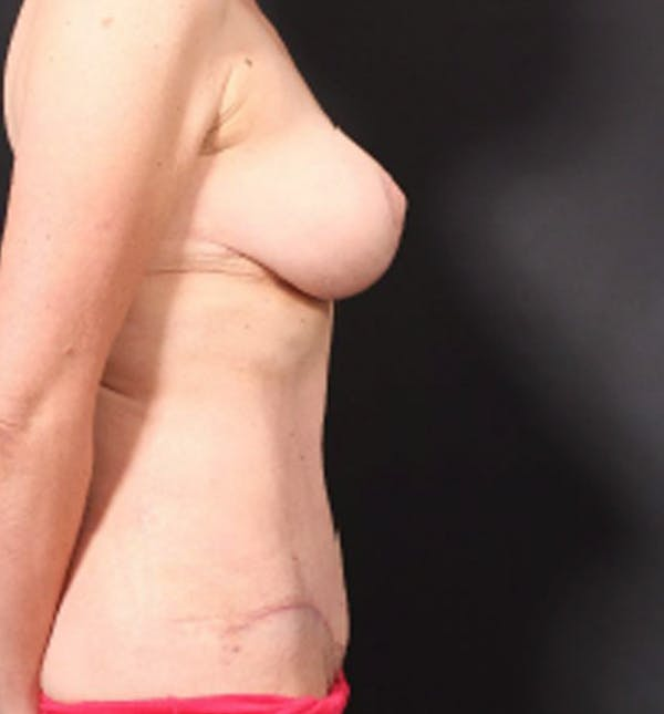 Breast Lift Mastopexy Gallery - Patient 14089786 - Image 10