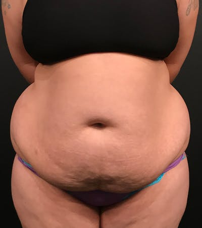 Plus Size Tummy Tuck® Gallery - Patient 14089788 - Image 1