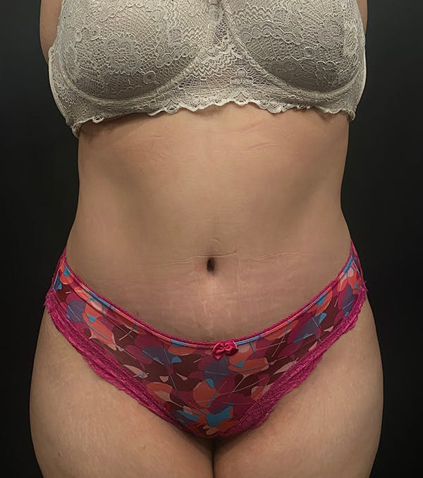 Plus Size Tummy Tuck® Gallery - Patient 14089788 - Image 2
