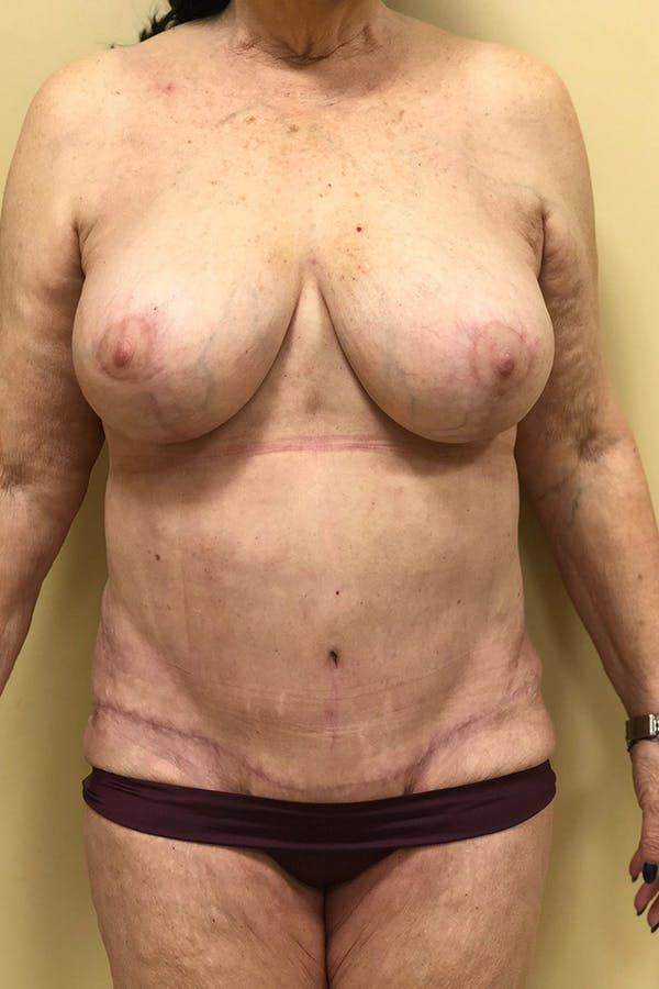 Breast Lift Mastopexy Gallery - Patient 14089790 - Image 2