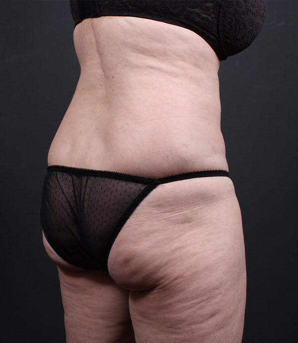Liposuction Gallery - Patient 14089798 - Image 1