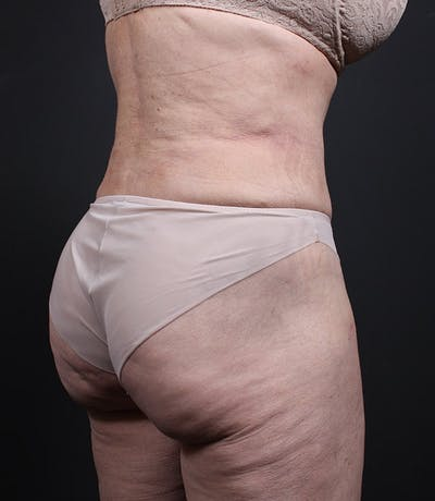 Liposuction Gallery - Patient 14089798 - Image 2