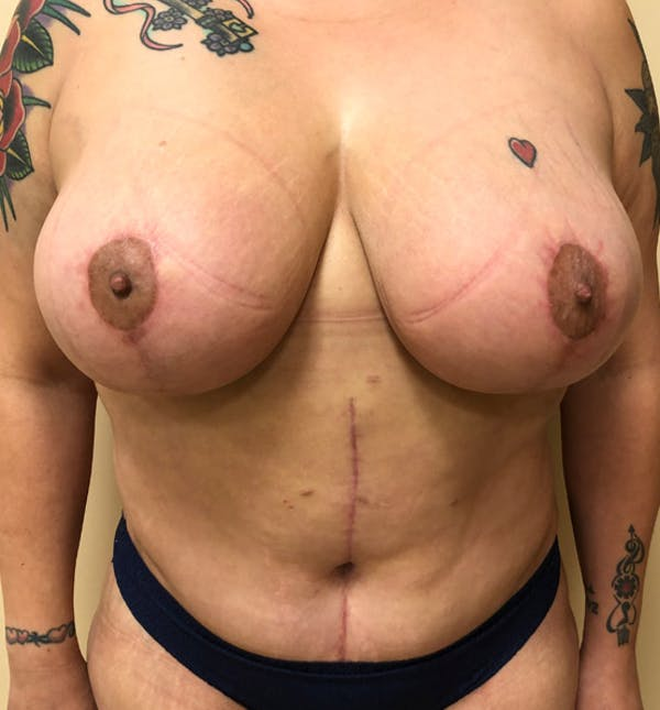 Breast Lift Mastopexy Gallery - Patient 14089791 - Image 2