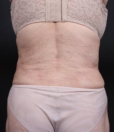 Liposuction Gallery - Patient 14089798 - Image 4