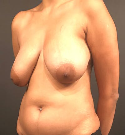 Breast Lift Mastopexy Gallery - Patient 14089799 - Image 1