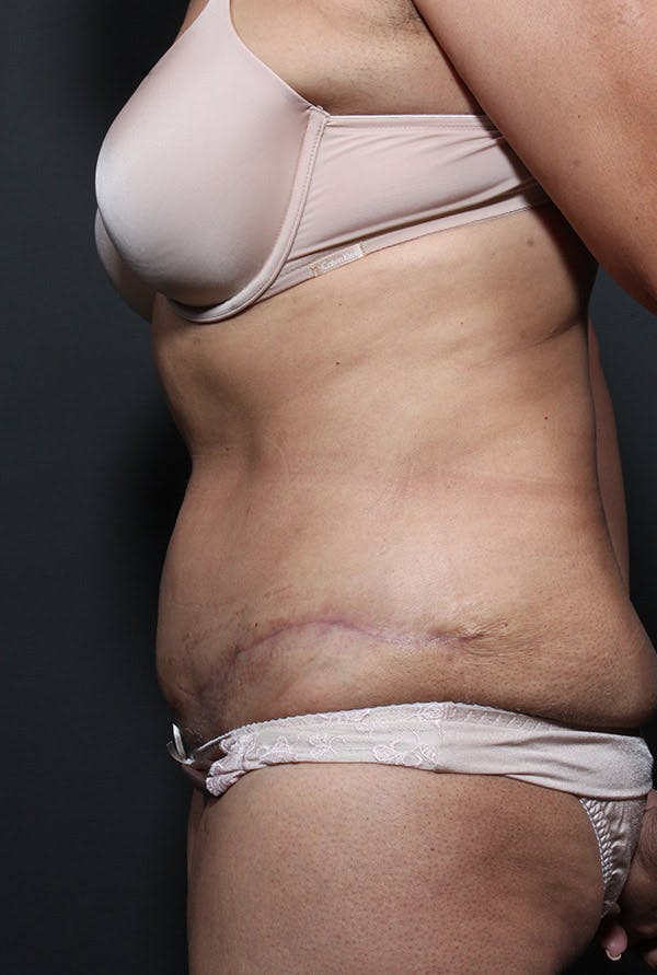 Mommy Makeover Gallery - Patient 14089797 - Image 6
