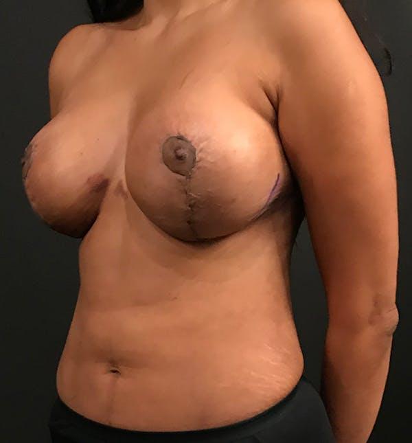 Breast Lift Mastopexy Gallery - Patient 14089799 - Image 2