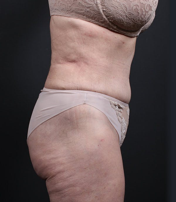 Liposuction Gallery - Patient 14089798 - Image 6