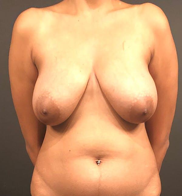 Breast Lift Mastopexy Gallery - Patient 14089799 - Image 3