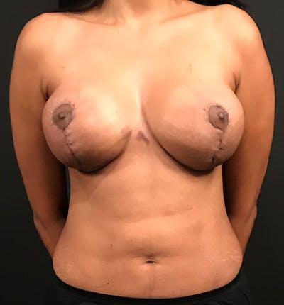 Breast Lift Mastopexy Gallery - Patient 14089799 - Image 4