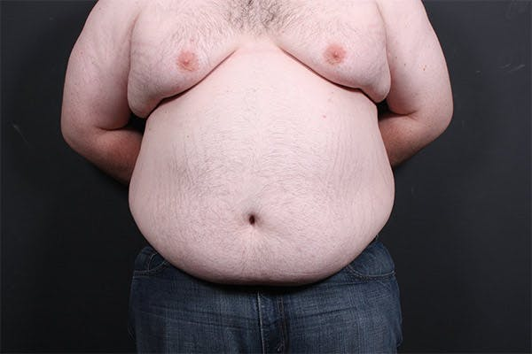 Liposuction Gallery - Patient 14089801 - Image 3