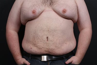 Liposuction Gallery - Patient 14089801 - Image 4