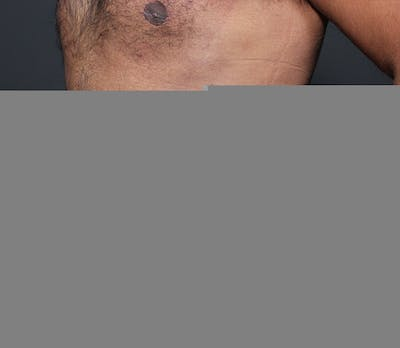 Liposuction Gallery - Patient 14089803 - Image 2