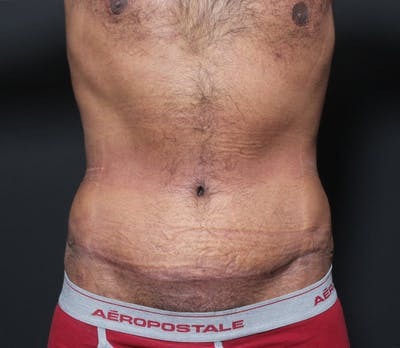 Liposuction Gallery - Patient 14089803 - Image 4