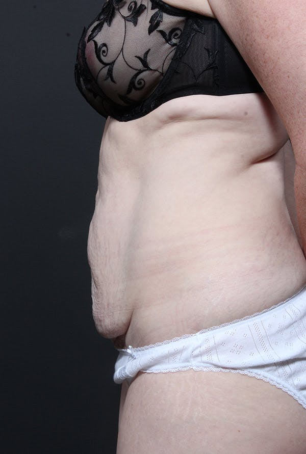 Mommy Makeover Gallery - Patient 14089805 - Image 5