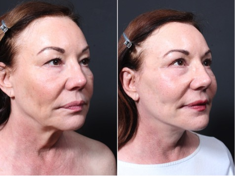 Natural face lift by Dr Repta
