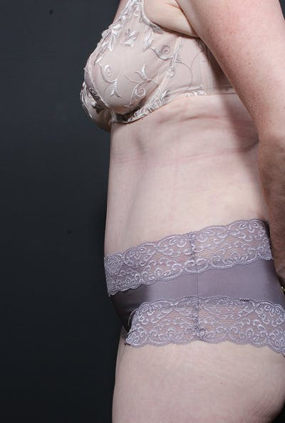 Mommy Makeover Gallery - Patient 14089805 - Image 6