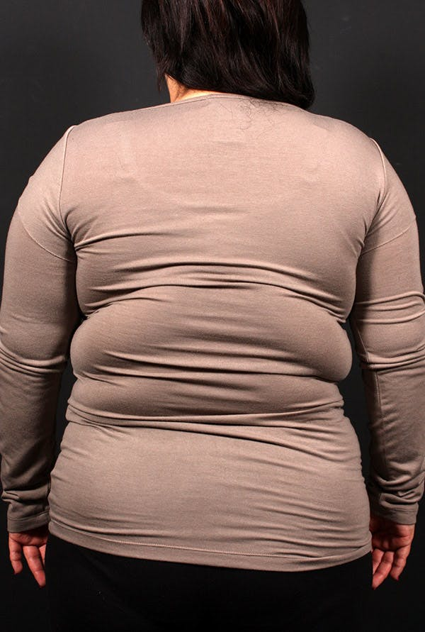 Liposuction Gallery - Patient 14089817 - Image 1