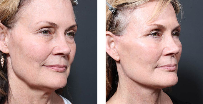 Dr. Repta facelift before & after