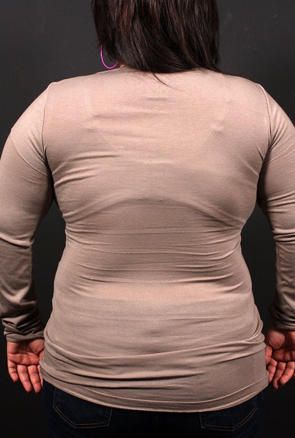 Liposuction Gallery - Patient 14089817 - Image 2