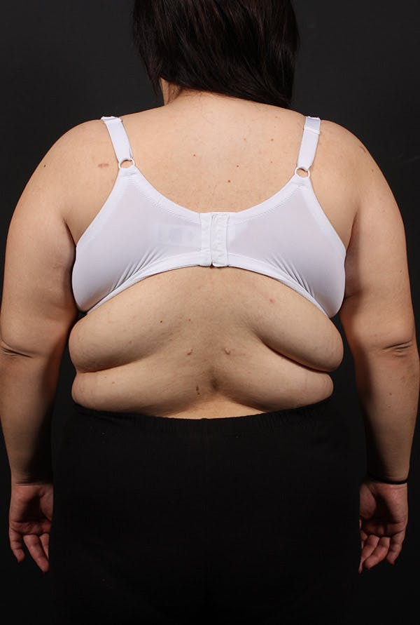 Liposuction Gallery - Patient 14089817 - Image 3